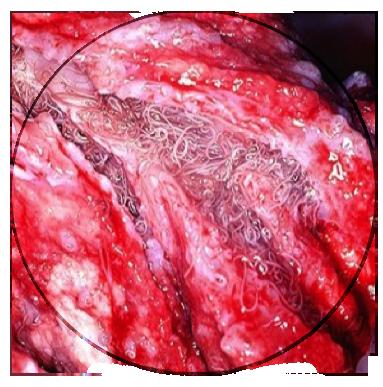 lungworm preston vets