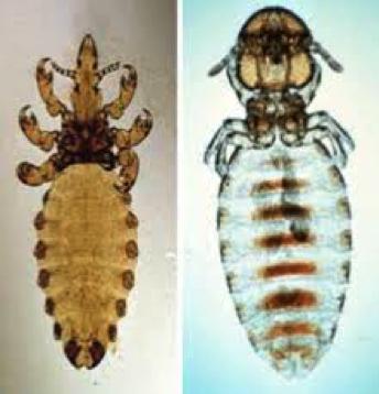 Haematopinus Lice