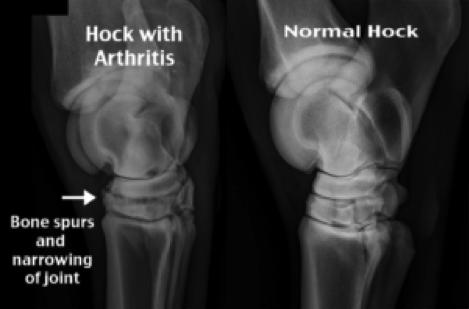 Osteoarthritis radiograph