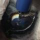 corneal debridement